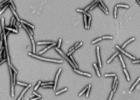 Mokslo naujienos: skaidulas fermentuojančios bakterijos pagerino antro tipo diabeto pacientų sveikatą