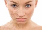 Patarimai, kaip prižiūrėti veidą pasibaigus žiemai
