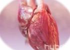 Širdies persodinimo operacija. Dirbtinė širdis [Mokslo populiarinimo konkursas]